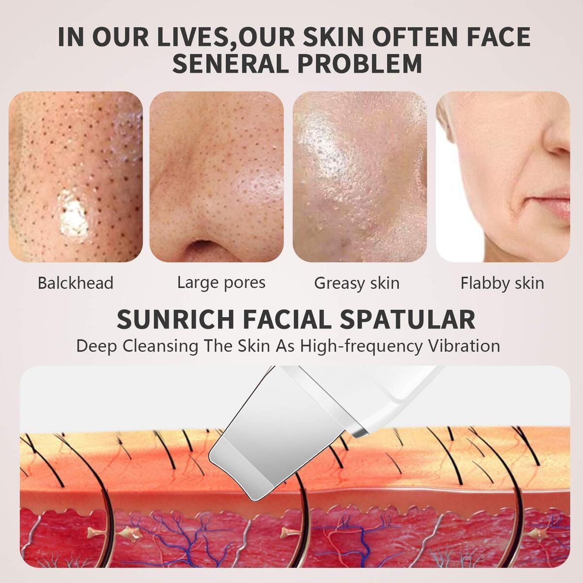 Skin Scrubber Face Spatula Blackhead Remover Facial Scraper Pore Cleaner Acne Comedone Extractor for Face Deep Cleansing Lifting Moisturizing by Sunrich