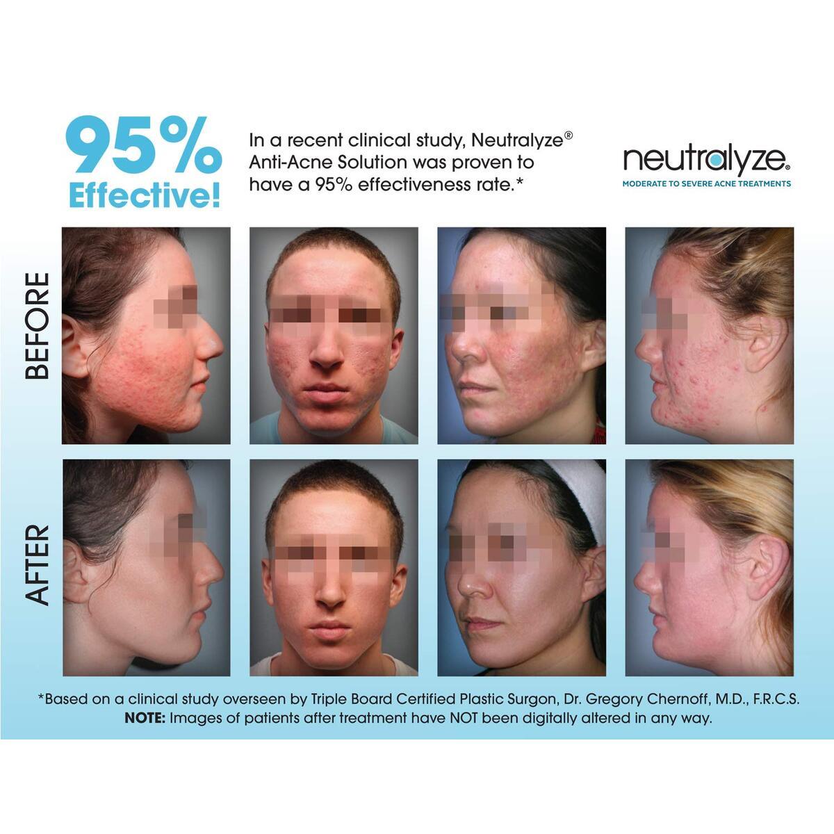 Neutralyze Moderate To Severe Acne Clearing Serum | Maximum Strength Cystic Acne Serum + Acne Spot Treatment Gel With 2% Salicylic Acid + 1% Mandelic Acid + Nitrogen Boost Skincare Technology (1.5 oz)