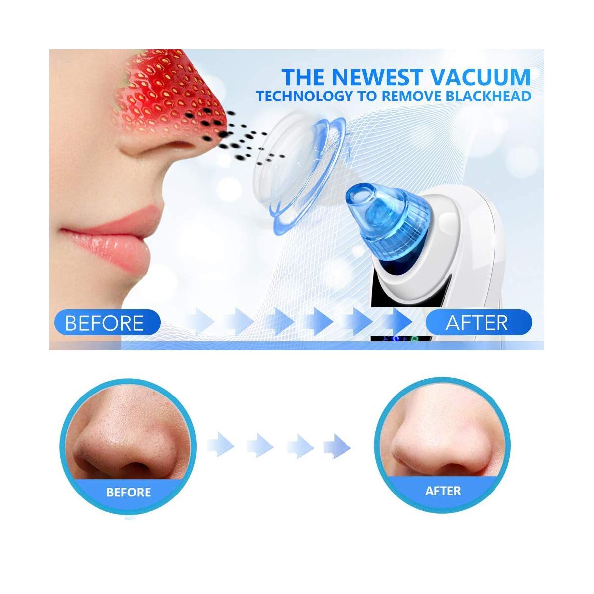 Electric Blackhead Vacuum Pore Cleaner Remover Suction Extractor - Strong Suction Blackhead Acne Removal Cleaning Tool for Facial Skin Care Professional USB Rechargeable with Touch Screen Setting