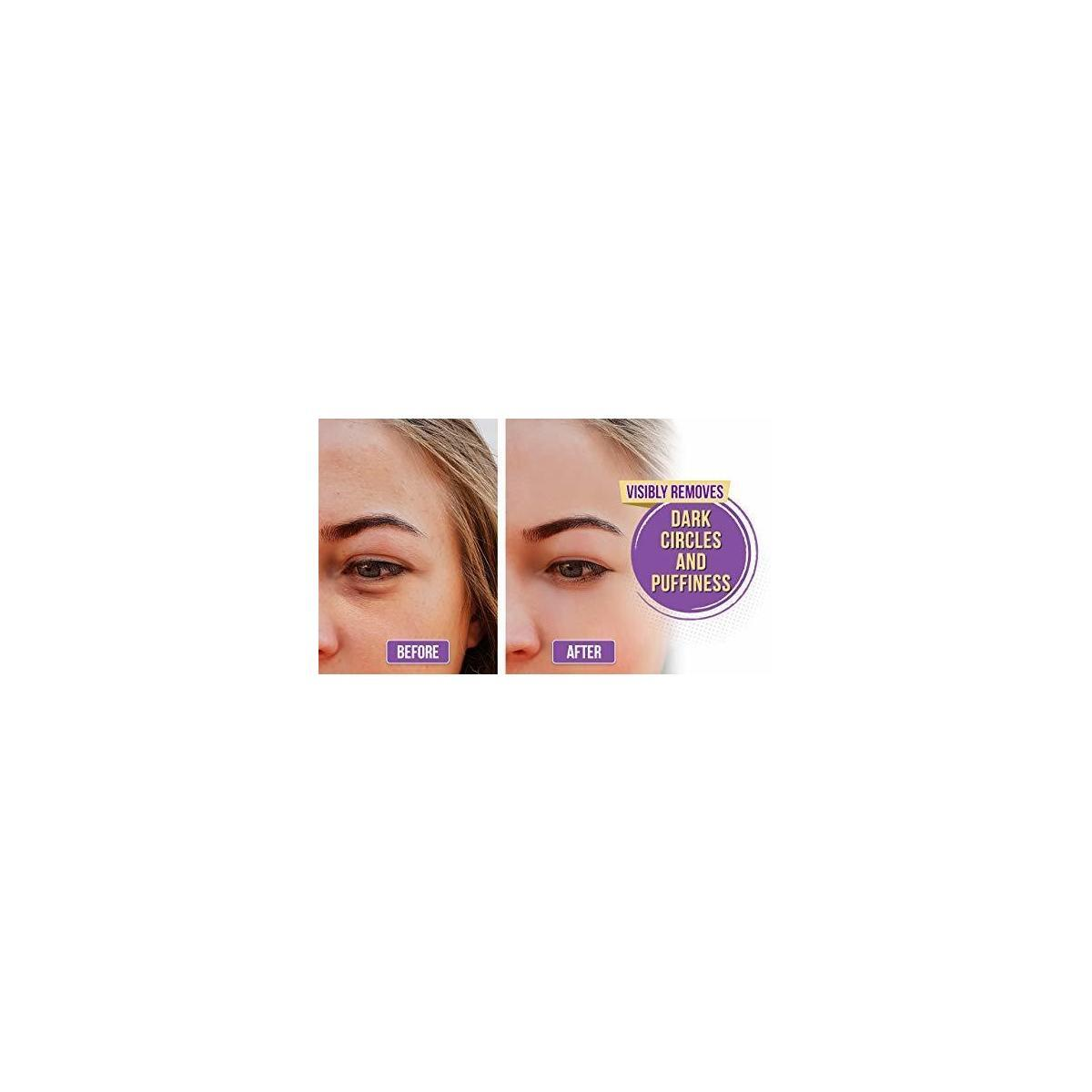 Under Eye Patches- Eye Mask for puffy eyes, dark circles - under eye gel Pads with hyaluronic acid - Collagen Serum for undereye Bags Treatment, Gold Anti Wrinkle Pad,Natural Hydrogel sheet
