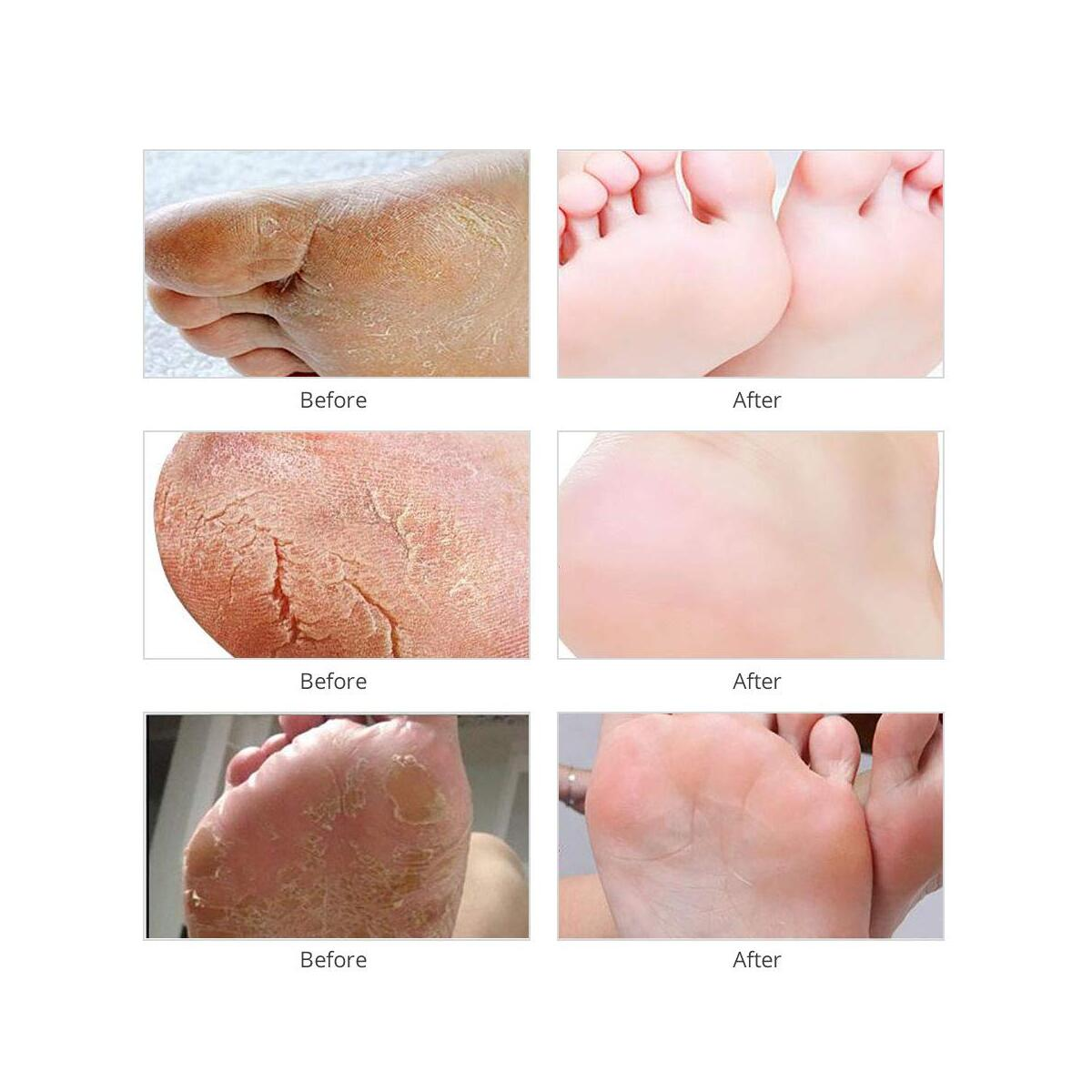 Voglily Foot Peel Mask Exfoliating Booties for Peeling Off Calluses & Dead Skin, Exfoliant for Soft baby Feet, Men & Women Upadted Version 2 Pack