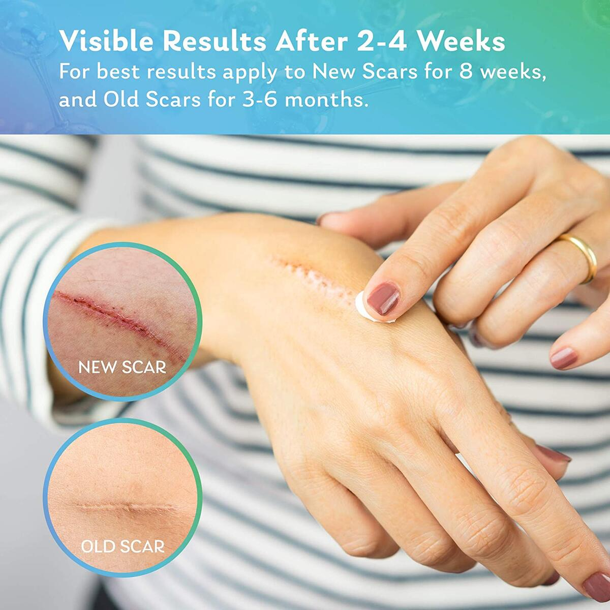 Regeneren Plus Silicone Scar gel, Advanced Scar Treatment, for C-section, Stretch Marks, Burns Repair, Acne, Surgery, Make Scars Smaller & Less Visible, Face and body Skin Repair