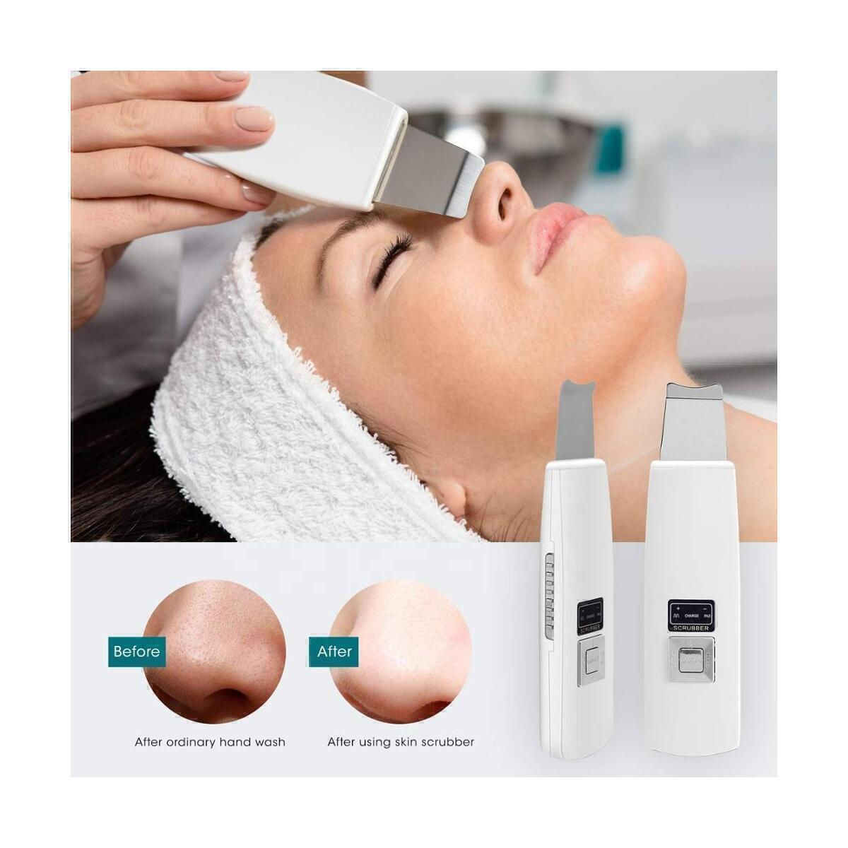 SkinAngel Ultrasonic Ionic Skin Scrubber at our Amazon Store
