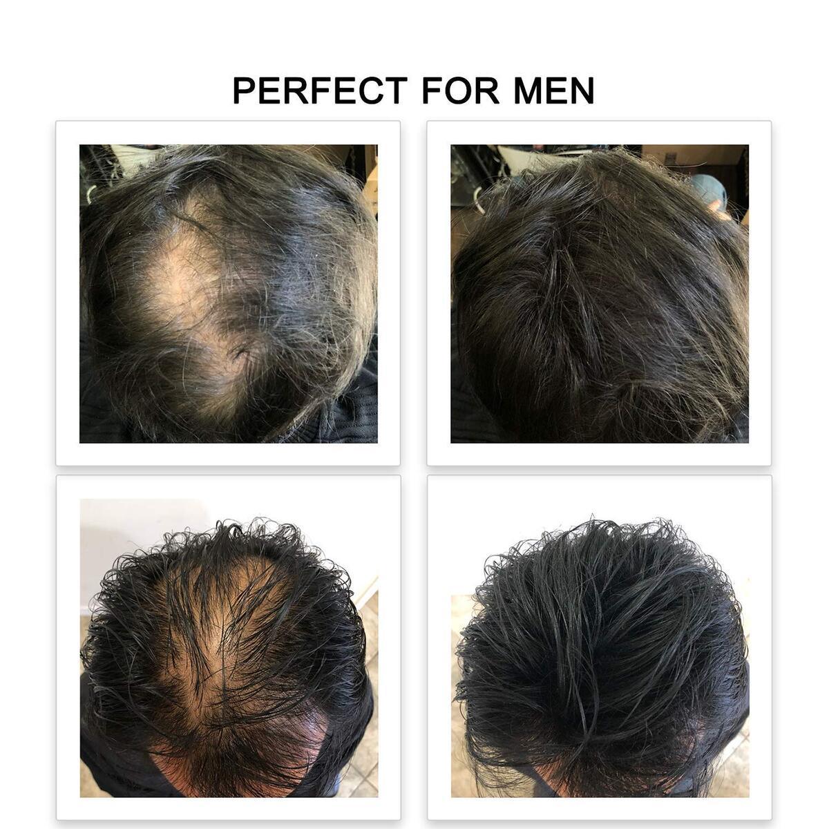 Febron hair fibers 10g DARK BROWN perfect for thinning hair