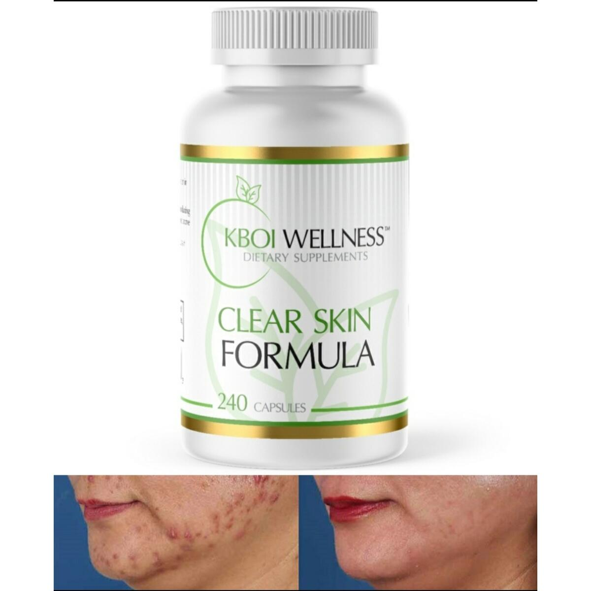 Clear Skin Formula (For Acne/Pimples)