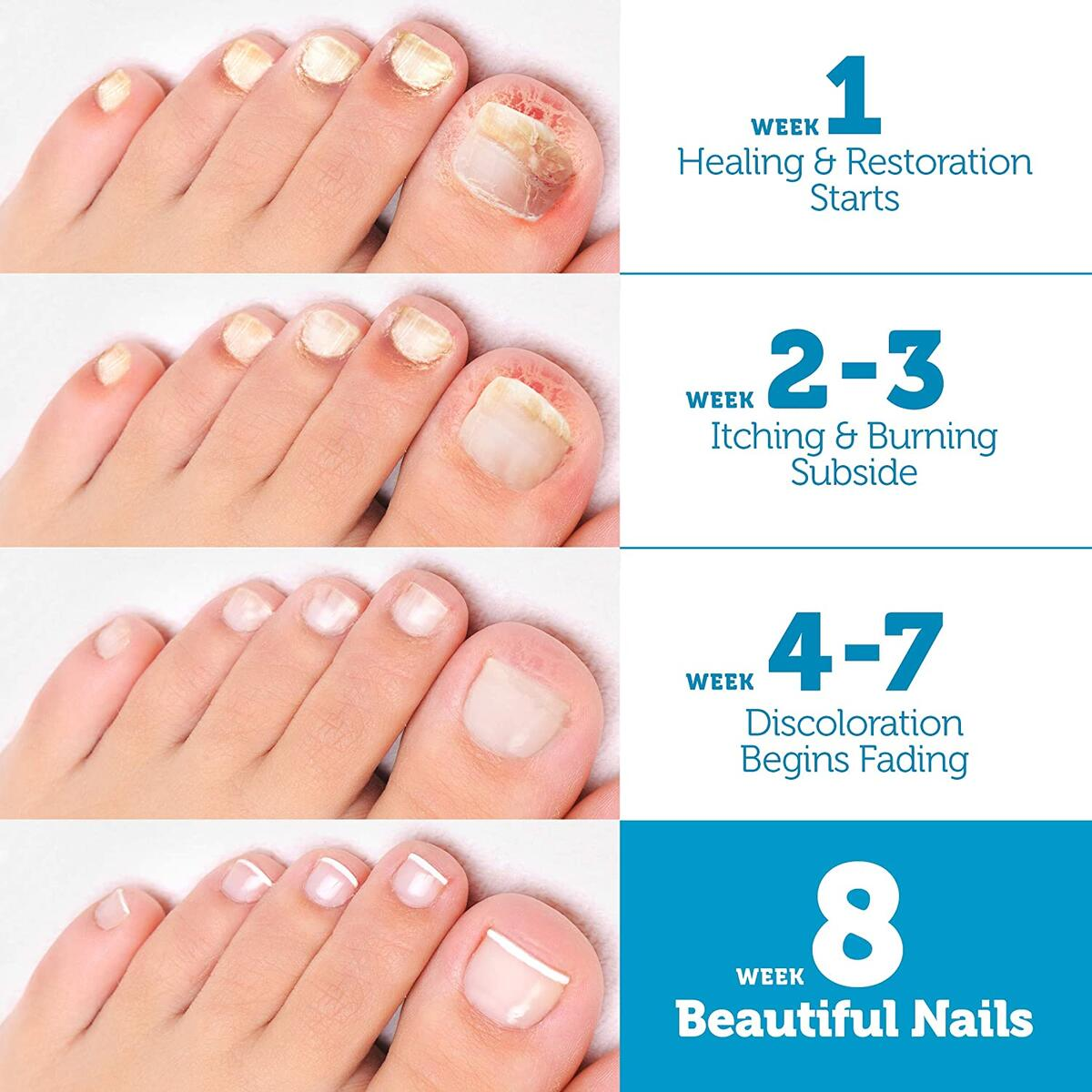 Finger & Toenail Fungus Treatment Pens (4 Pack), Nail Fungus Treatment for Toenail Restoration, Toe Fungus Nail Treatment Extra Strength contains Undecylenic Acid for Nail Repair