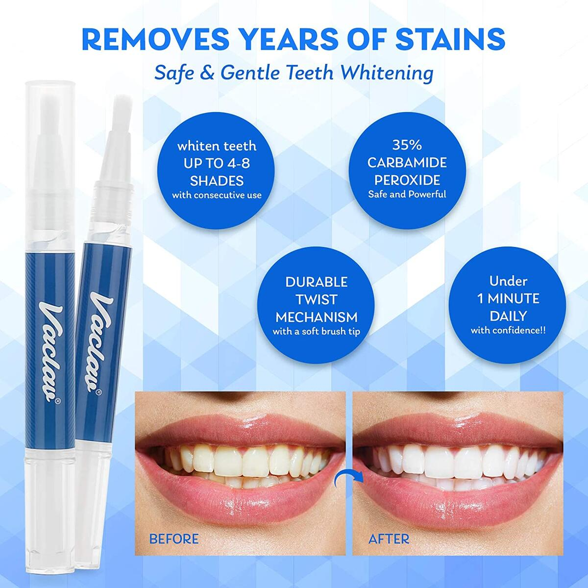 Beri Teeth Whitening Pen, Effective Painless Upgraded Formula, Contains 3ml Whitening Gel, Up to 25 Uses, Bright Smile in Minutes, Mint Flavor (2 Pcs)
