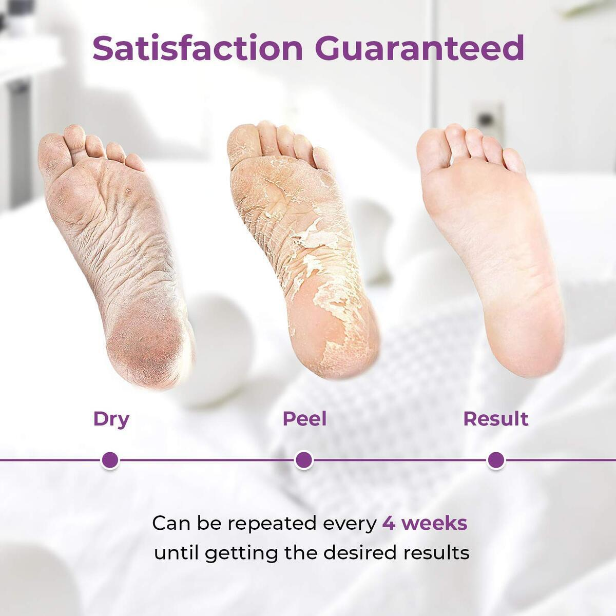 Foot Peel Exfoliating Mask (dont use coupon)